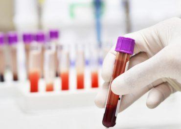 "Сахарный диабет 2 типа: причины развития, диагностика, лечение наблюдение в АМДЦ "" НеоМед"" Анапе"